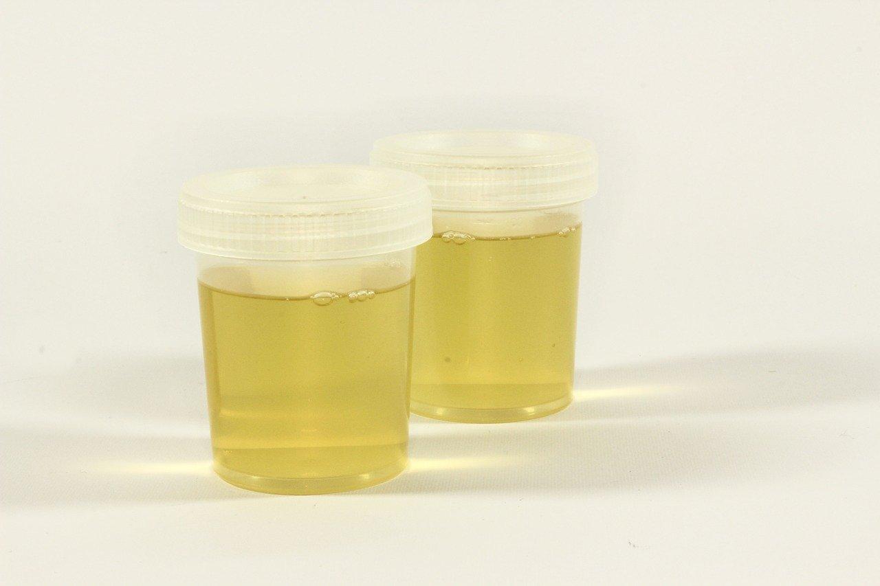 Urinprøve
